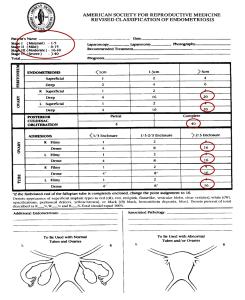 Classificazione della AFS